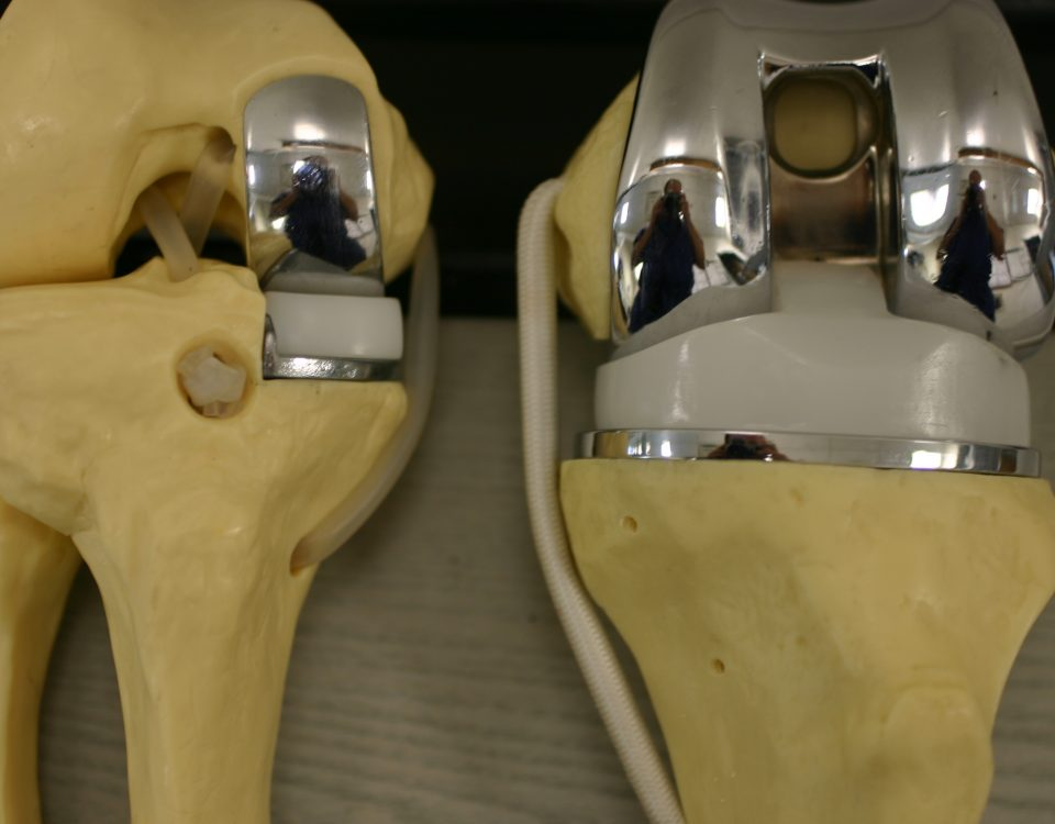 Partial Knee Replacement >> Partial And Total Knee Replacement Archives Dr Santosh